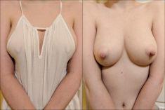 Grandes pechos y preciosos pezones